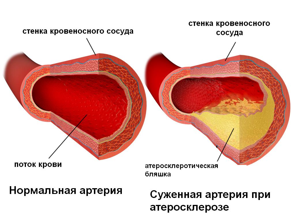 Что такое атеросклеротическая бляшка