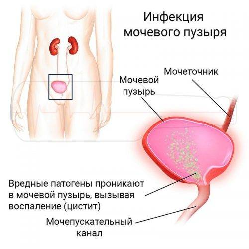 Уретрита чем от цистит отличается ттг расшифровка т4 крови анализ