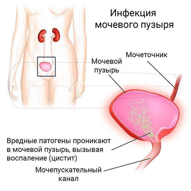 Цистит с кровью