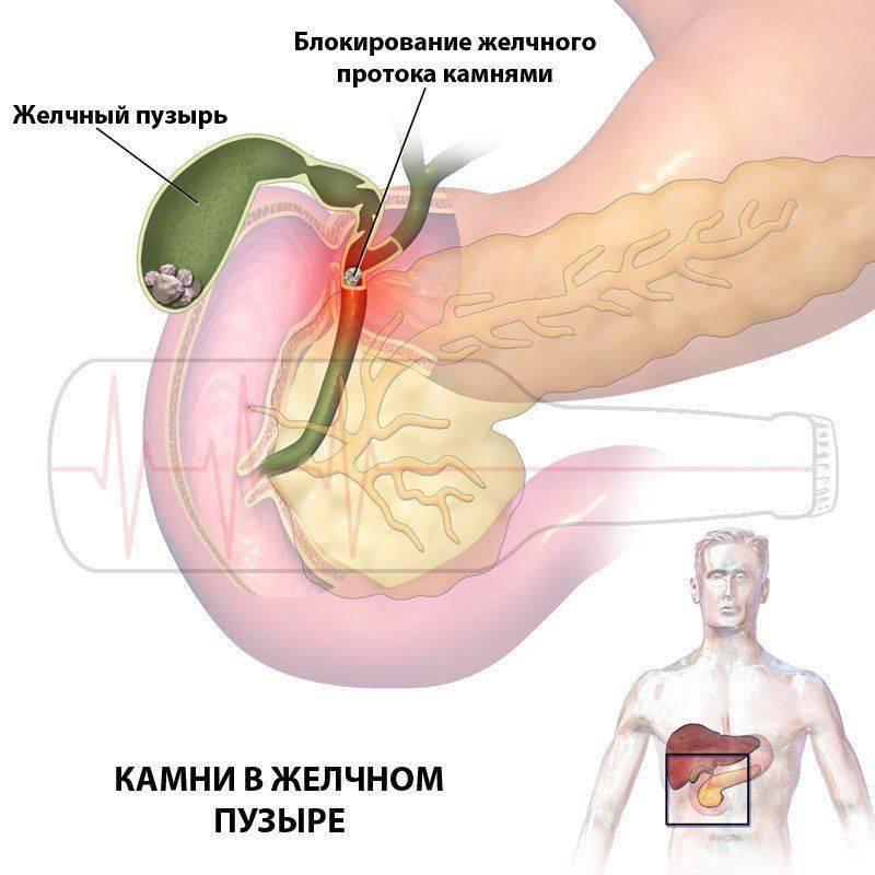Алкоголь после удаления желчного пузыря (холецистэктомии): можно ли