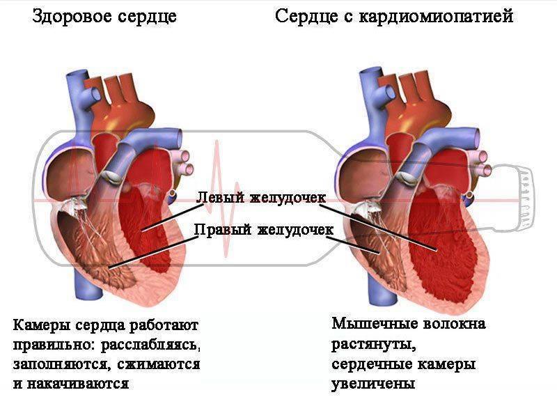 Норма и кардиомиопатия