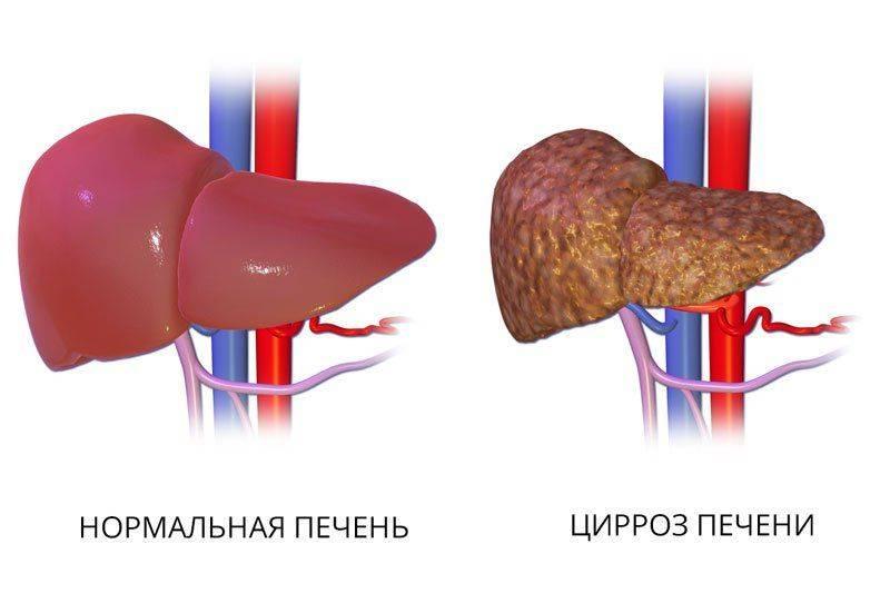 Нормальная печень и печень, пораженная циррозом