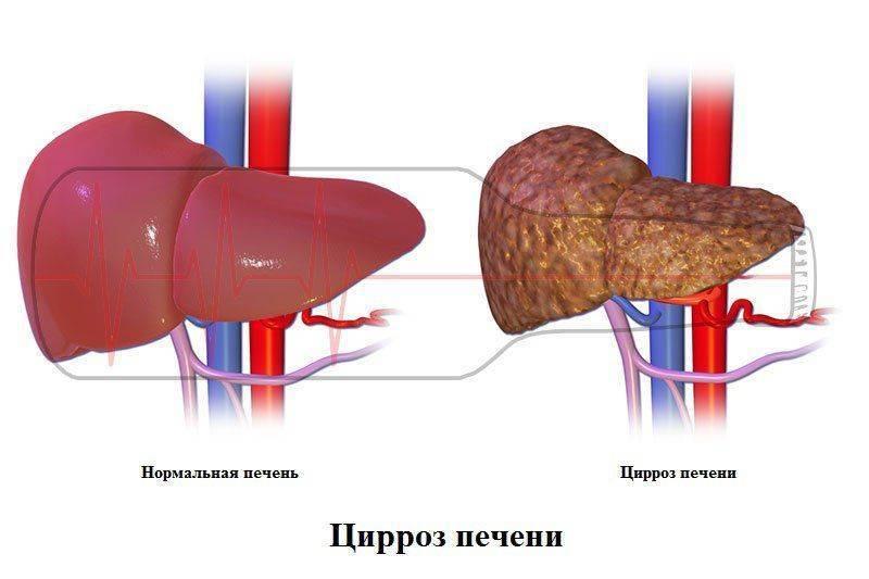 Здоровая печень и при циррозе