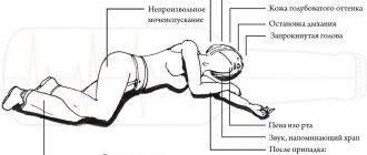 Симптомы эпилептического припадка