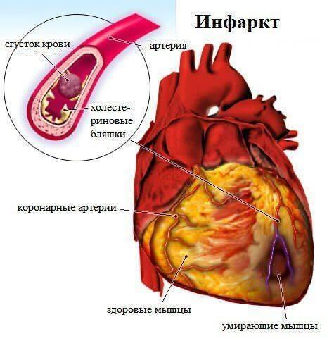 Что такое инфаркт