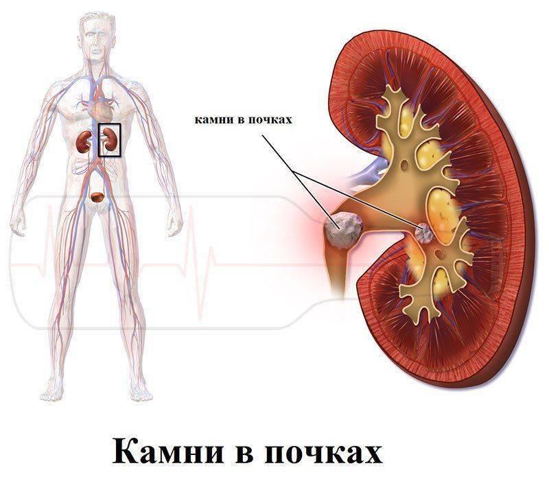 Проявление мочекаменной болезни