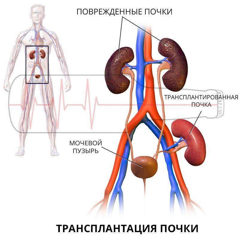 Трансплантация почки