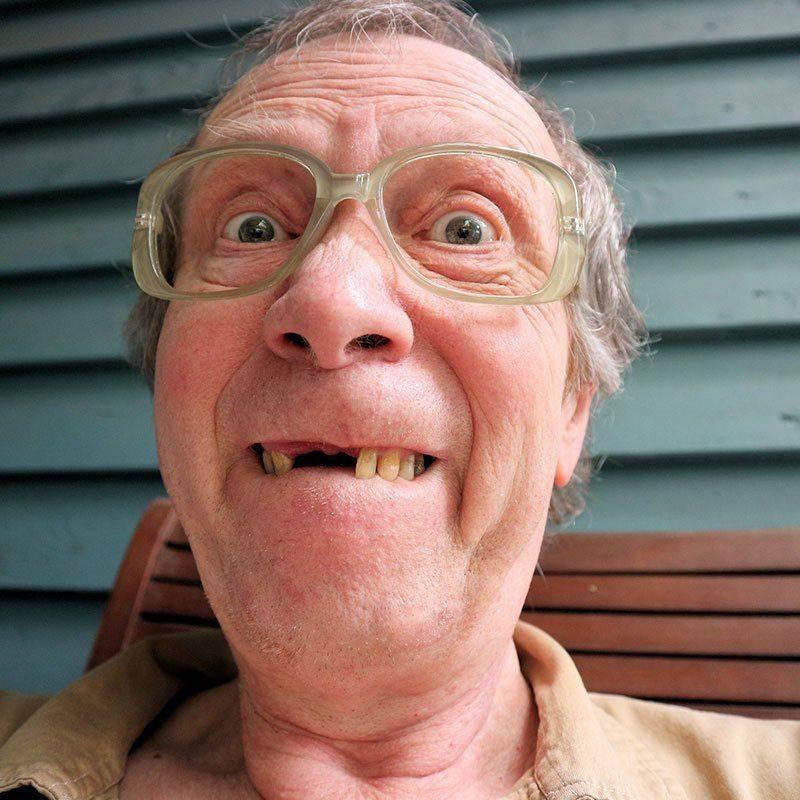 Влияние алкоголя на зубы