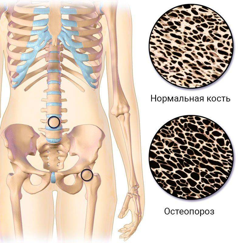 Нормальная кость и пораженная остеопорозом