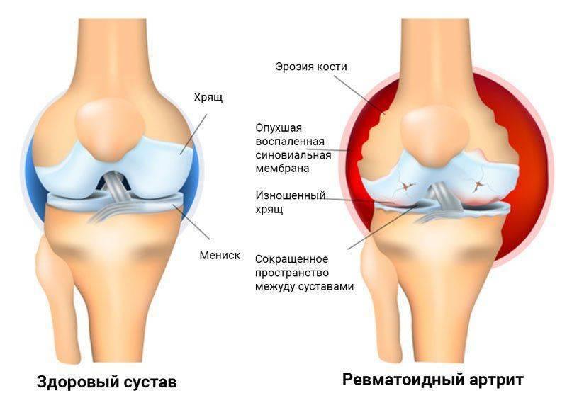 Наша психика и суставы ортез коленного сустава rkn 103