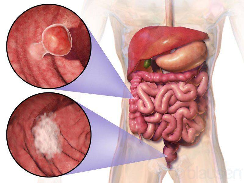 Дивертикула и онкология кишечника
