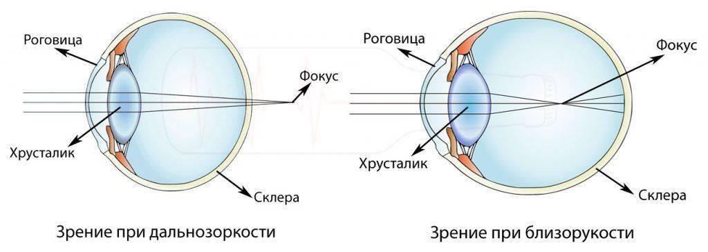 Миопия (близорукость) и гиперметропия (дальнозоркость)