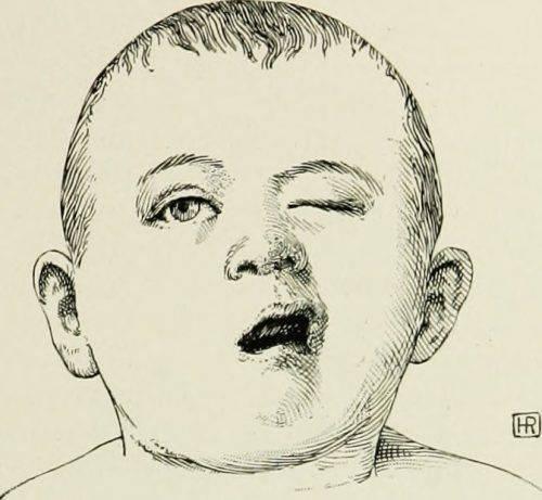 Неврит на примере ребёнка