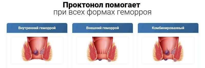 Проктонол (Proctonol) комплекс при геморрое купить в Жиндо