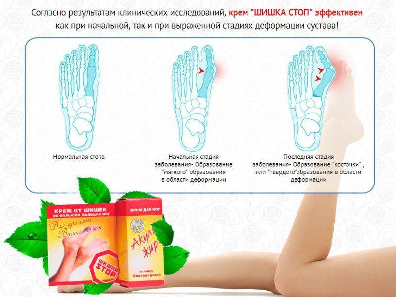 Натирающая мазь при боли в суставах газета целительница как определить есть ли мениск коленного сустава