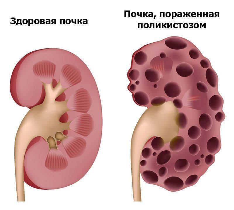 Вред курения для почек