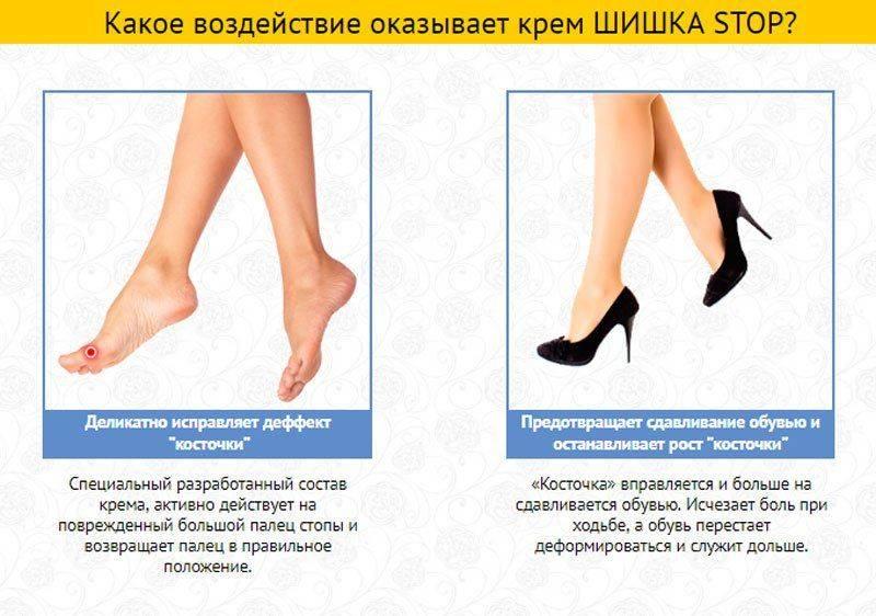 Воздействие крема Шишка стоп