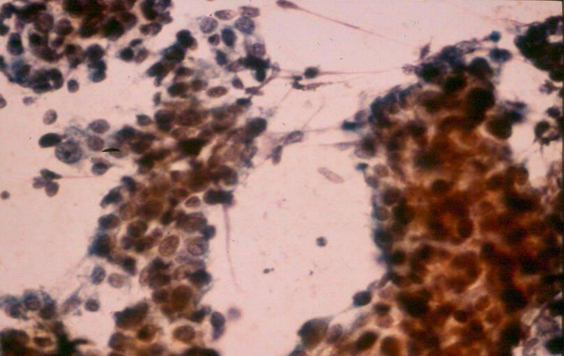 Гепатобластома — описание болезни