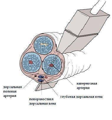 Ультразвуковая допплерография пениса