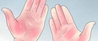 Руки свидетельствуют о болезни печени