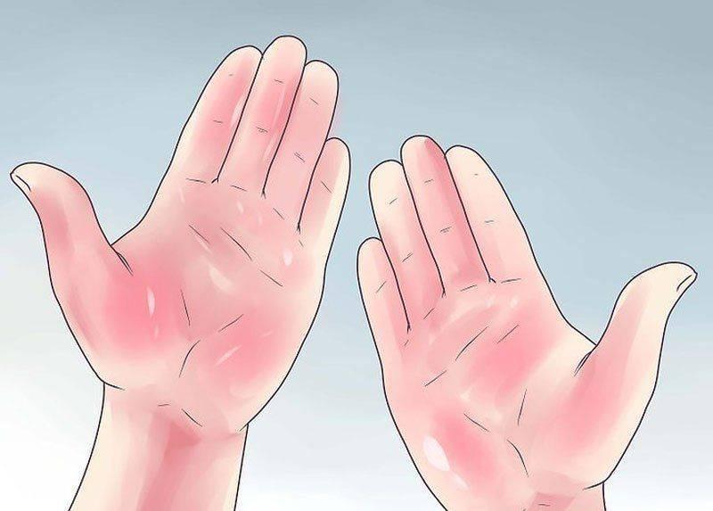 Почему при циррозе краснеют ладоне?