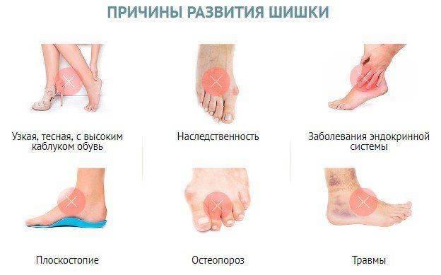 Причины развития «шишки»