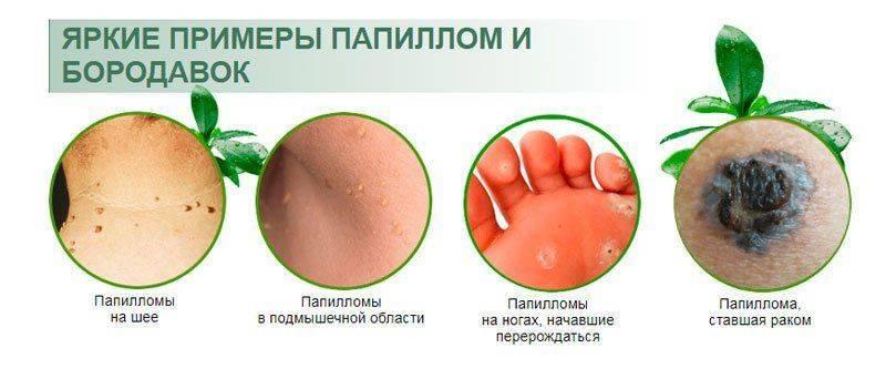 Примеры образований на коже