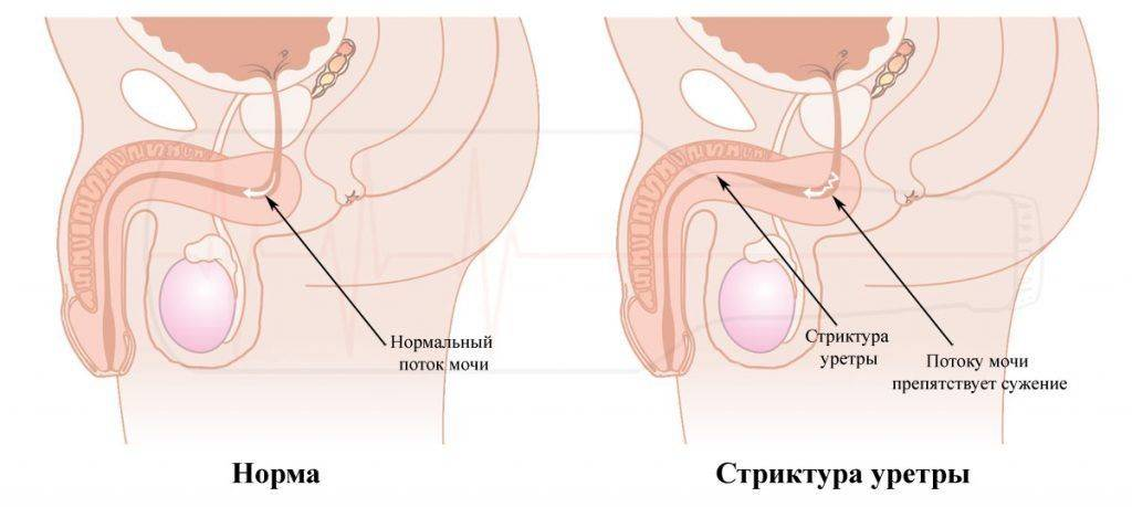 Что такое стриктура уретры