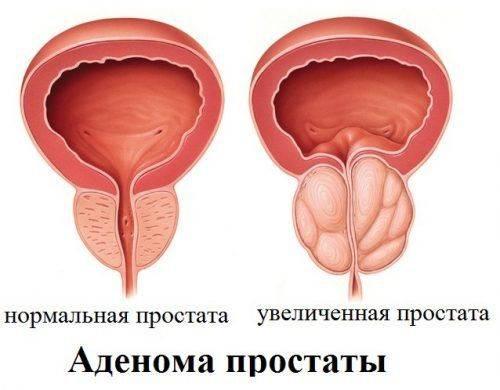Народное средство от простатита аденома для мужчин