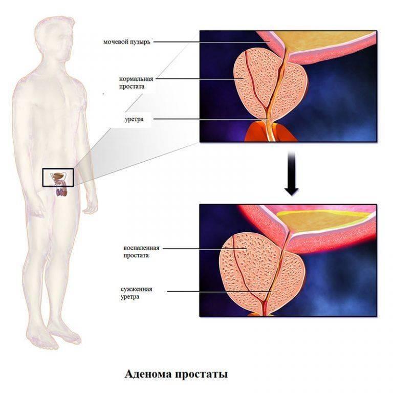 Простатит и аденома простаты это одно и тоже сколько было обострений у простатита
