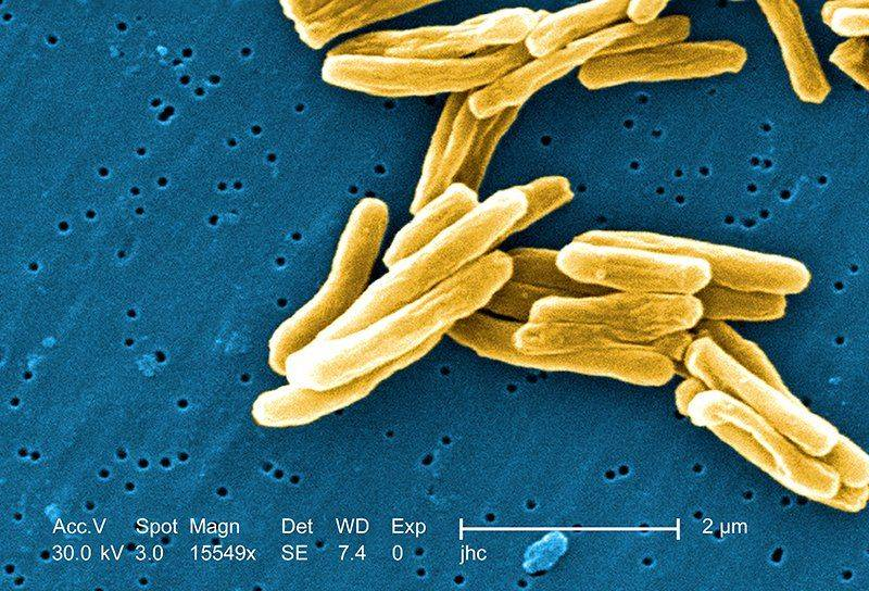 Виды туберкулёза