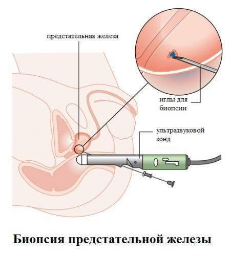 Что такое биопсия