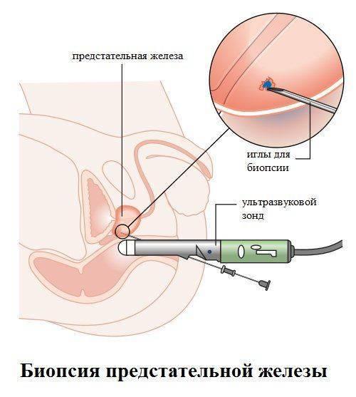 Сколько времени делается биопсия простаты
