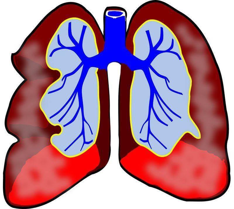 Осложнения и последствия разных форм туберкулеза