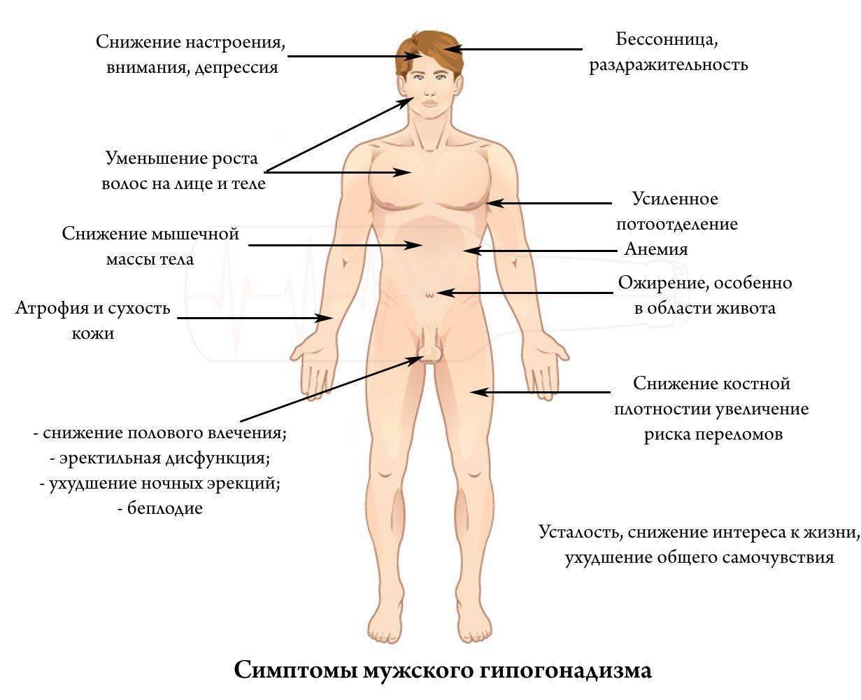 Гипогонадизм у мужчин — симптомы и лечение