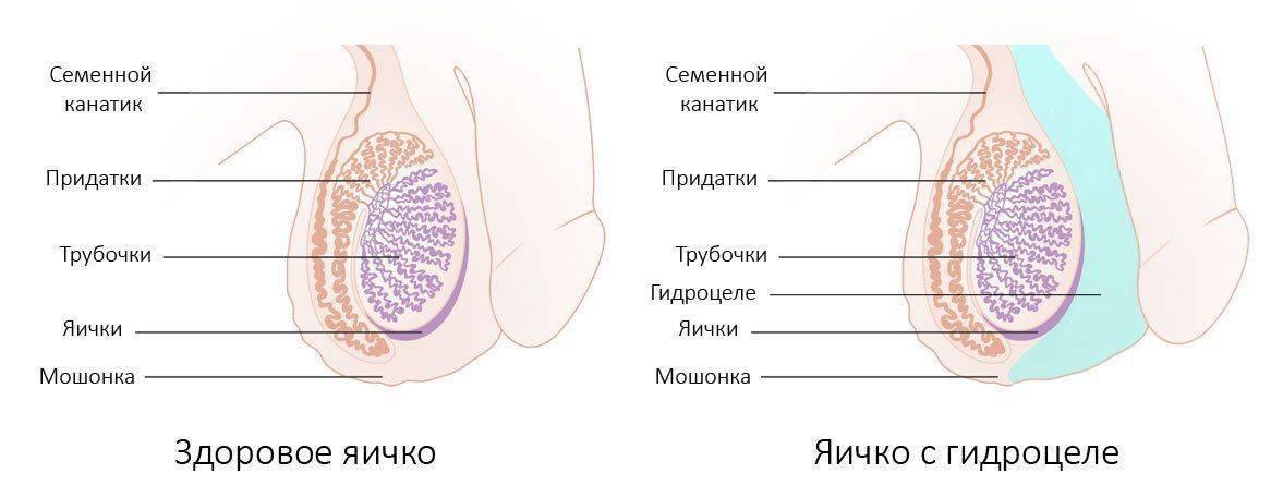 Норма и гидроцеле