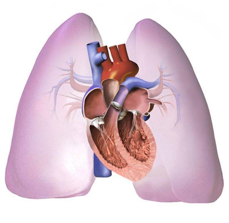 Распад легких при туберкулезе