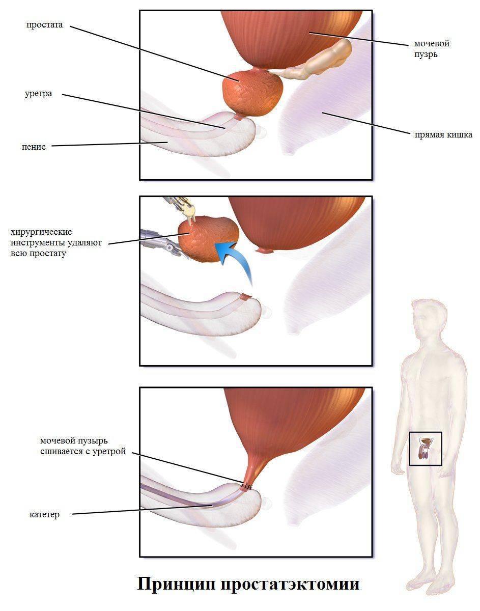 Как проводится простатэктомия
