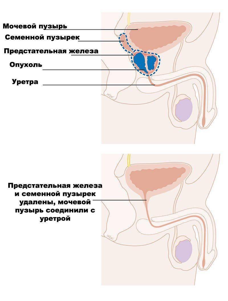 Простатэктомия