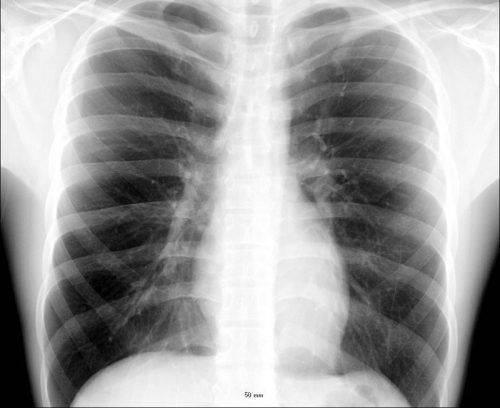 Рентгенологический снимок легких