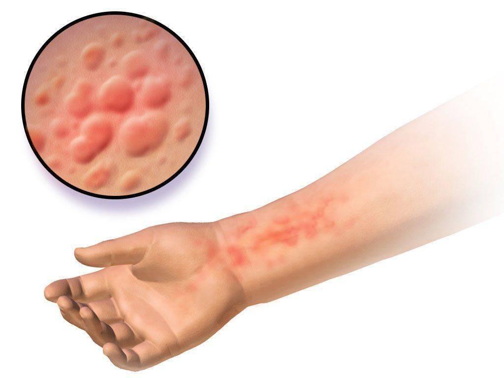 Зуд кожи при заболеваниях железы