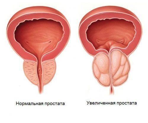 Простата нормальная и увеличенная
