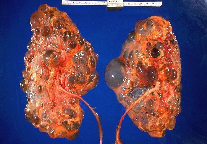 Болезнь Берже (IgA-нефропатия)