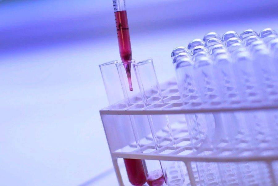 Описание амилоидоза почек