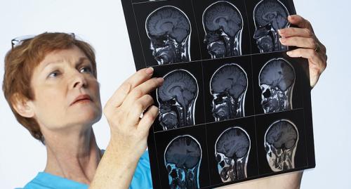 Рентгенологический снимок