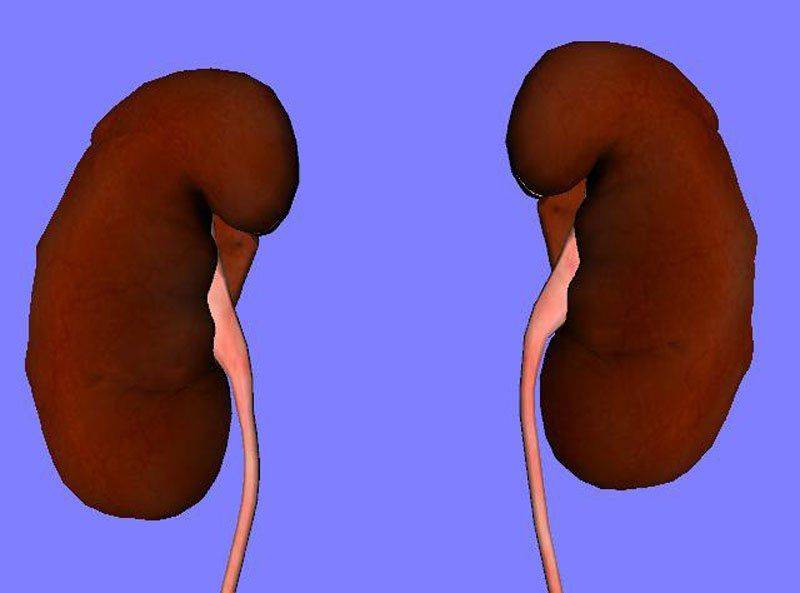Агенезия или аплазия почки