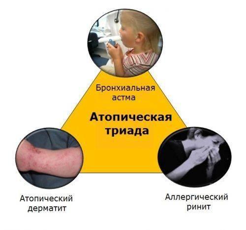 Схема атопической триады