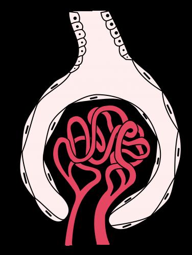 Схема гломерулонефрита