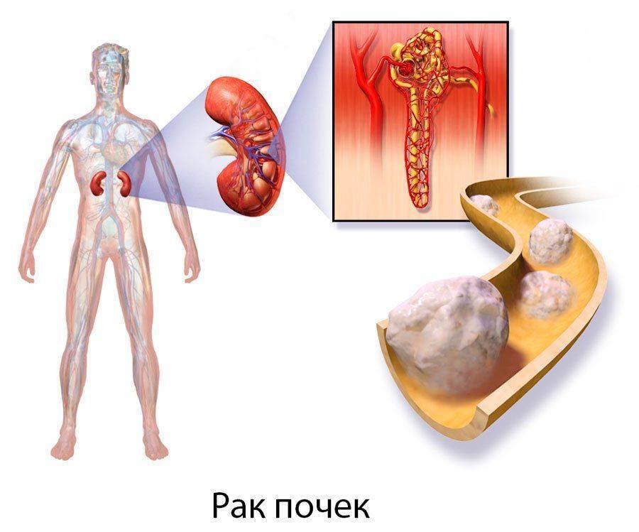 Что делать, если болят почки и температура?