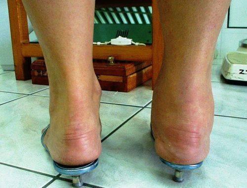 Артрит голеностопа